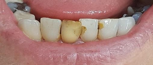 gebit voor interne bleekbehandeling