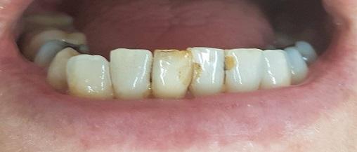 gebit na 3 weken intern bleken