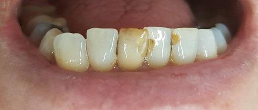 gebit na 1 week intern tanden bleken