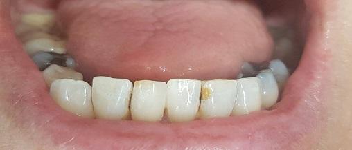 eindresultaat na 3 weken intern tanden bleken