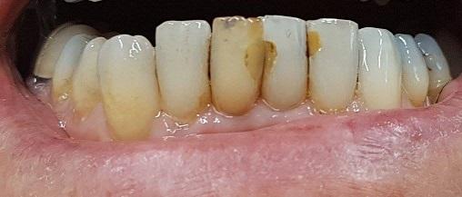 gebit na 2 weken intern bleken